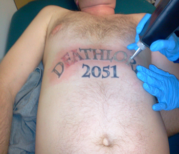 Tattoo treatment Q-switched laser