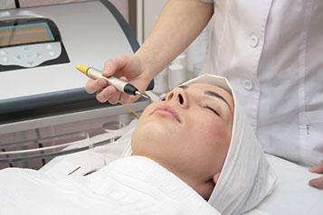 Hyfrecator treatment, Skin Tag Removal, Skin abnormalities, Warts, Skin Tags, Cherry Angiomas, Telangiectasia, spider vein,