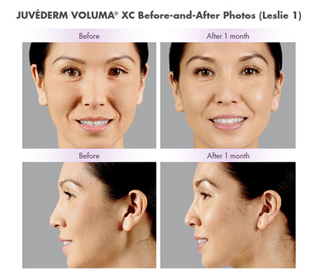 Voluma xc before and after, Before and after Voluma, Flat cheeks and aging cheeks, facial fillers, dermal filler,injection, skin rejuvenation,hyaluronic acid,facial wrinkles,cosmetic treatment, juvederm,folds,juvederm filler,wrinkle treatment,juvederm treatment,facial filler,smile lines,injectable dermal filler, antiaging skin care treatment, skin care products,professional skin care product,voluma,reduce wrinkles,advanced skin care,wrinkle treatments,