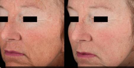 Wrinkle Before and afterskin rejuvenation