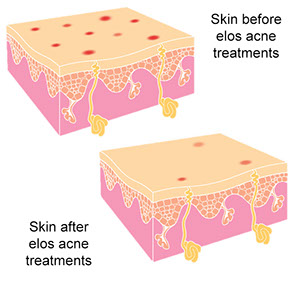 acne before and after,FDA approved eMatrix Sublative technology, little downtime, Crow's feet, Stretch marks, Skin tightening, Reduces fine lines, Rejuvenates collagen, Stimulate collagen, Youthful skin tone, wrinkles, Restore lost volume, Elasticity, repair Cellulite,