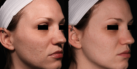 acne scar before and after Sublative