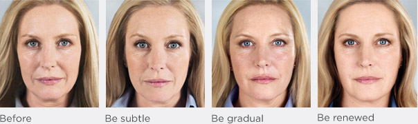 Sculptra before and after, restylane lift face parts apex apple hollow, facial volume, visible results, Sculptra filler, longer-lasting solutions, aesthetics injections, Sculptra Questions and Answers, missing collagen, folds and wrinkles, full natural appearance,