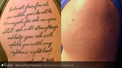 before and after tattoo removal PicoSure, Q-Switch, R20 and 1540