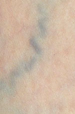 before 65mm lower Leg, spider Vein,Varicose Vein, now available, Pittsburgh, PA, age spots, broken capillaries, unattractive discolorations, face, chest, legs, fastest, safest, remove spider veins,