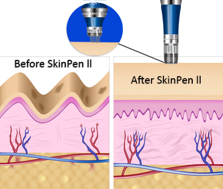 Before and after skinpen, treatment diagram, microneedling, micro needling, skin pen, micro needles, derma pen, dermal rollers, punctured holes, hera microneedle machine, needles, poke holes, wrinkles, fine lines, collagen, smooth texture, scars, divots, skin tone, Hyaluronic Acid, fast, stimulate collagen, eliminate scars, crow's feet, upper lip wrinkles, fraxel laser, skin tightening, minimally invasive, minimal downtime, safe, price