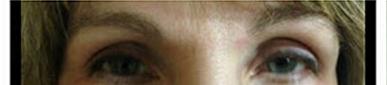 before eyelashes
