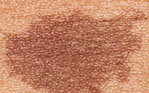 Types of birthmarks Cafe Au Lait Spots
