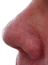 Cherry spider after, Photo-Facial,Reds, Rosacea treatment, Capillary, Angioma, Browns, Pigmentation, Melasma, Sun, Age Spots,Calming Facial,Ultra-Sound Facial,