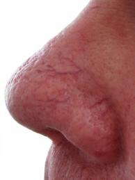 cherry spider veins before, Photo-Facial,Reds, Rosacea treatment, Capillary, Angioma, Browns, Pigmentation, Melasma, Sun, Age Spots,Calming Facial,Ultra-Sound Facial,