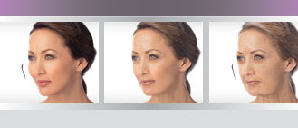 comparing cheek lift