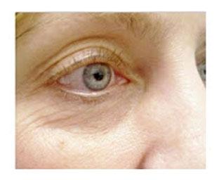 eyeliner after before