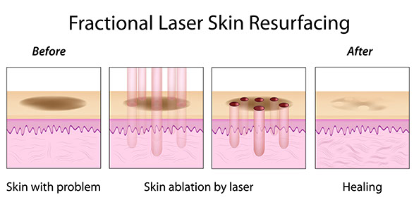 Fractional laser resurfacing diagram, unwanted tattoo, regret, Important Tattoo Facts, professional, experienced, internationally trained, certified laser technicians, educated, unsightly tattoo, best results, cover up, Total Removal,