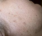 Freckles Ephelis