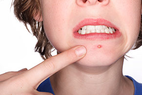 innovative solutions for acne Pimple