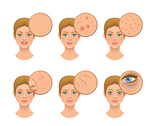 Photofacial Treatment Options for light scars and skin blemishes