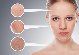innovative Photofacial Treatment Options for red pigments, Photofacial, Rosacea and Cosmetic Vascular, Sun, Age, Brown and Red Spots, Active Acne Blemishes,