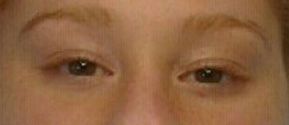 Lash extensions before