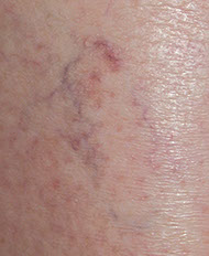 leg vein before, spider Vein,Varicose Vein, now available, Pittsburgh, PA, age spots, broken capillaries, unattractive discolorations, face, chest, legs, fastest, safest, remove spider veins,