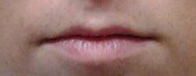 lips before