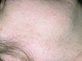 pigmentation lesion face