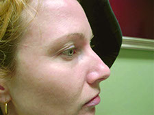 rejuvenation photofacial before and after