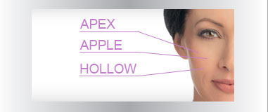 restylane lift face parts apex apple hollow