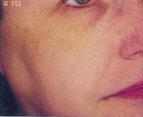 rosacea vasily cheek post