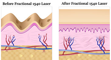 Skin after 1540 laser, fractional laser resurfacing diagram for stretch marks and scars