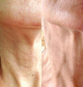 skin pen before and after, skin pen, micro needles, derma pen, dermal rollers, punctured holes, hera microneedle machine, needles, poke holes, wrinkles, fine lines, collagen, smooth texture, scars, divots, skin tone, Hyaluronic Acid, fast, stimulate collagen, eliminate scars, crow's feet, upper lip wrinkles, fraxel laser, skin tightening, minimally invasive, minimal downtime, safe, price