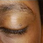 skintag on eyelid