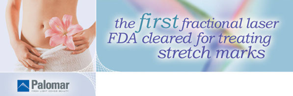 Stretch marks FDA cleared the Palomar 1540 Laser 91318