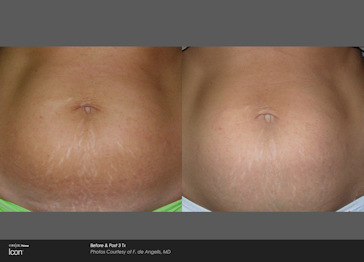 stretchmarks stomach before and after