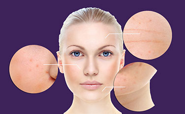 Sun and ages spots page diagram, skin conditions, complexion, skin conditions, Pigmented Lesions, pigmentation, face, neck, chest, back, shoulders, arms, hands, Sun Damage, Sunspots, Freckles, Brown Marks, Skin Spots, Liver spots, Birthmark, Moles, Freckles, Beauty Marks, Rosacea,