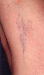 veins before, Spider Vein,Varicose Vein,now available,Pittsburgh, PA,age spots,broken capillaries,unattractive discolorations,face,chest,legs,fastest,safest,remove spider veins,revolutionary new technology,Intense Pulse Light,IPL,therapy,Large areas,treated quickly,easily,less damage,skin undamaged,revolutionary laser, remove spider veins,
