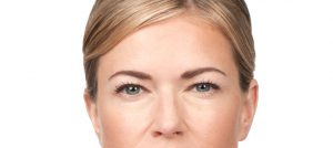 Botox Frown Lines, BOTOX Cosmetic, BOTOX®, botox Pittsburgh, botox treatment, botox procedures, botox injection, Cosmetic injections, wrinkles, eye, brow, brows, injections, botulinum, Anti perspire, sweating, chronic migranes, relax muscles, furrows, crow's feet, voluptuous lips, thinning lips, botox cost, botox prices, botox photo, botox pictures, Cosmetic, Surgeon,
