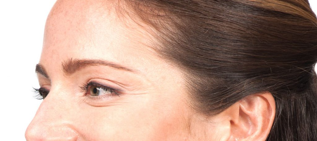 Botox crows feet, BOTOX Cosmetic, BOTOX®, botox Pittsburgh, botox treatment, botox procedures, botox injection, Cosmetic injections, wrinkles, eye, brow, brows, injections, botulinum, Anti perspire, sweating, chronic migranes, relax muscles, furrows, crow's feet, voluptuous lips, thinning lips, botox cost, botox prices, botox photo, botox pictures, Cosmetic, Surgeon,