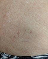 Spider veins, Varicose Vein, now available, now available, Pittsburgh, PA, age spots, broken capillaries, unattractive discolorations, face, chest, legs, fastest, safest, remove spider veins,