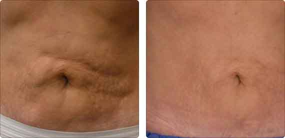 Body Contouring Before and After, laser lipo, lipo dissolve, electrothermal, thermigen, thermage, thermotherapy, body lift, accent, ultra accent, ultra xl, body slimming, tone, tighten, ultrashape, endermologie, velasmooth, lipomassage, bella contour, liptron 3000, mesotherapy, laser lipolysis, smart lipo, non invasive fat reduction, cool sculpting, laser body sculpting, non surgical liposuction, laser fat removal, fraxel,