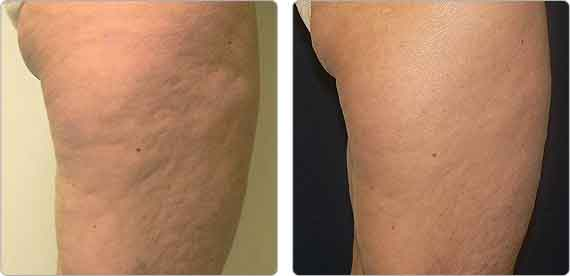 Body Contouring Before and After, Body Contouring Before and After, laser lipo, lipo dissolve, electrothermal, thermigen, thermage, thermotherapy, body lift, accent, ultra accent, ultra xl, body slimming, tone, tighten, ultrashape, endermologie, velasmooth, lipomassage, bella contour, liptron 3000, mesotherapy, laser lipolysis, smart lipo, non invasive fat reduction, cool sculpting, laser body sculpting, non surgical liposuction, laser fat removal, fraxel,