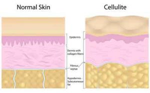 Diminishing the appearance of cellulite, weight loss, body wraps, Formostar, menstrual relief, Infrared wrap, cellulite, fat loss, pain relief, diet, infrared heat, toxins, calorie counting, increase metabolism, heat therapy, Detoxify, rejuvenation, wraps, body contouring, skin tone, Arthritis, exercise, fitness, stress, fatigue, immune system, body beautiful, nutrition, calories, circulation, Ecore Green, health