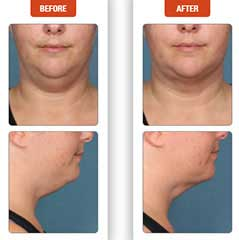Kybella Before and After, Appearance, Double Chin, Kybella, unwanted volume, chin area, what is kybella, permanent, sculpting a smooth jawline, enhance your natural features, FDA approved injectable, removes unwanted submental fat, Chin fat, Kybella injectable contours, younger appearance, breakdown of fat, Great candidates, traditional facelift, silhouette facelift, neck liposuction, 3D facelift, chin fat, remove, without surgery, injections, FDA approved, neck liposuction, facelift, permanent, how kybella works, pouch of fat below chin,kybella injections face