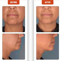 Kybella Before and After, Appearance, Double Chin, Kybella, unwanted volume, chin area, what is kybella, permanent, sculpting a smooth jawline, enhance your natural features, FDA approved injectable, removes unwanted submental fat, Chin fat, Kybella injectable contours, younger appearance, breakdown of fat, Great candidates, traditional facelift, silhouette facelift, neck liposuction, 3D facelift, chin fat, remove, without surgery, injections, FDA approved, neck liposuction, facelift, permanent, how kybella works, pouch of fat below chin,