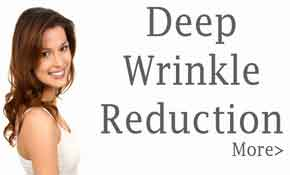 Deep Wrinkle Reduction, Pittsburgh Pa, Cranberry TWP Pa, Laser Menu Services, Body Beautiful Locations Page