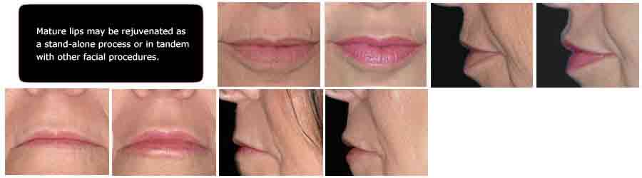Mature lips rejuvenation Augmented lips Before and after, Lip Augmentation Implants Perma