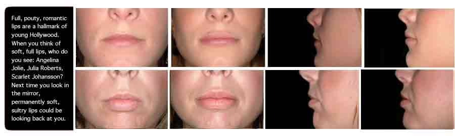 Augmented lips Before and after, Lip Augmentation Implants Perma