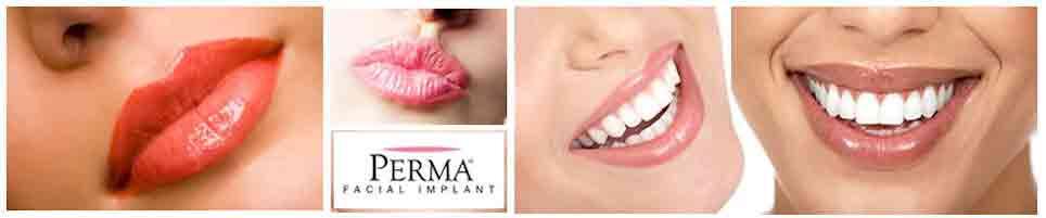 Perma facial implant, Lip Augmentation Implants Perma,