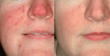 Photofacials before and after