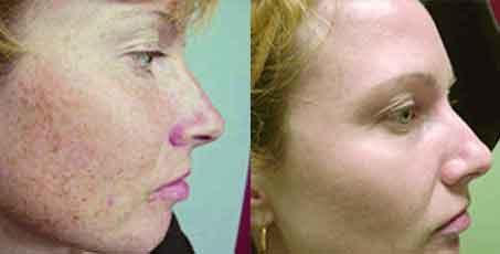 Photofacials rejuvation before and after