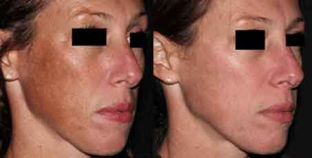 Picosure Skin Rejuvenation before and after